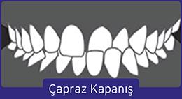 capraz-kapanis-1