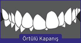 ortulu-kapanis-1