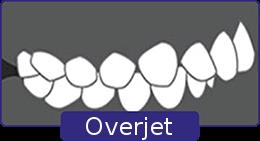 overjet-1