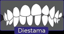 diestema-1
